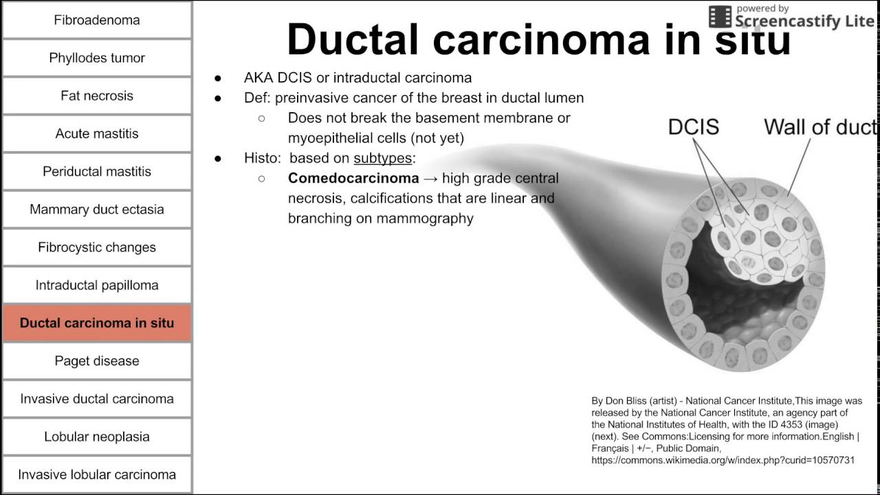 intraductal papilloma malignant potential tratament gat iritat