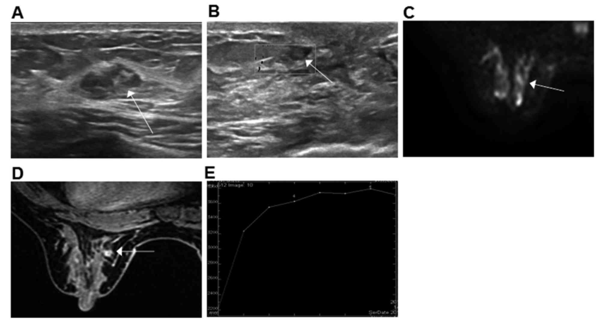 intraductal papilloma mri breast