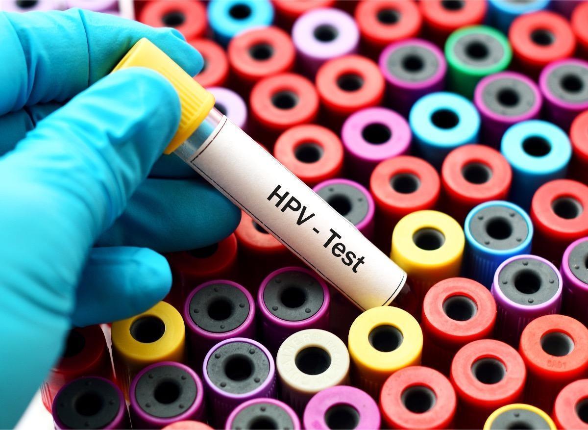 jai un papillomavirus cancer de prostata cenetec