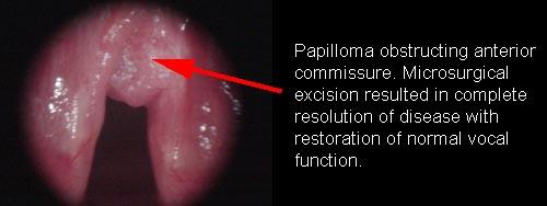 laryngeal papilloma of larynx cancer de pancreas no operable