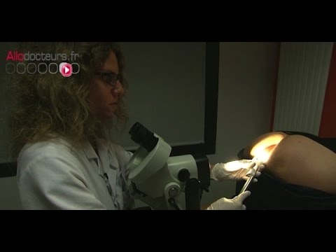 laser papillomavirus douleur paraziții albume