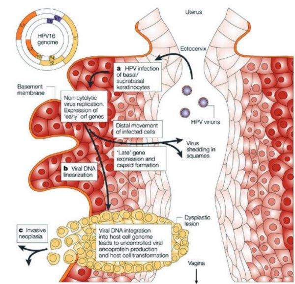 lien entre papillomavirus et cancer du col de luterus