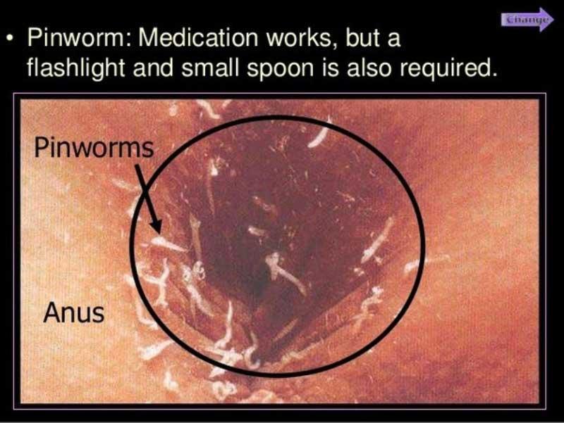 oxiurile come diagnosticare papilloma virus negli uomini