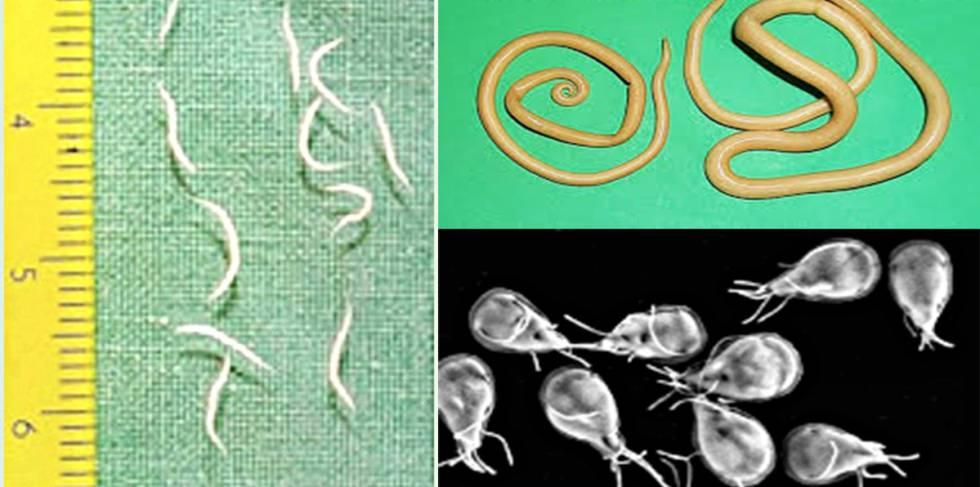 oxiuros huevos imagenes tonsillar pillar papilloma