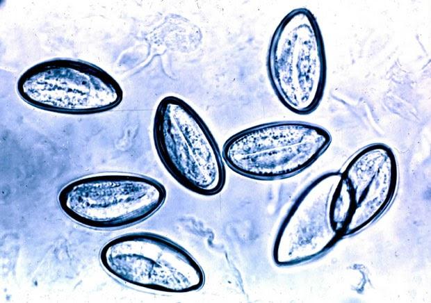 oxyuris vermicularis lecenje papillomavirus uomo test