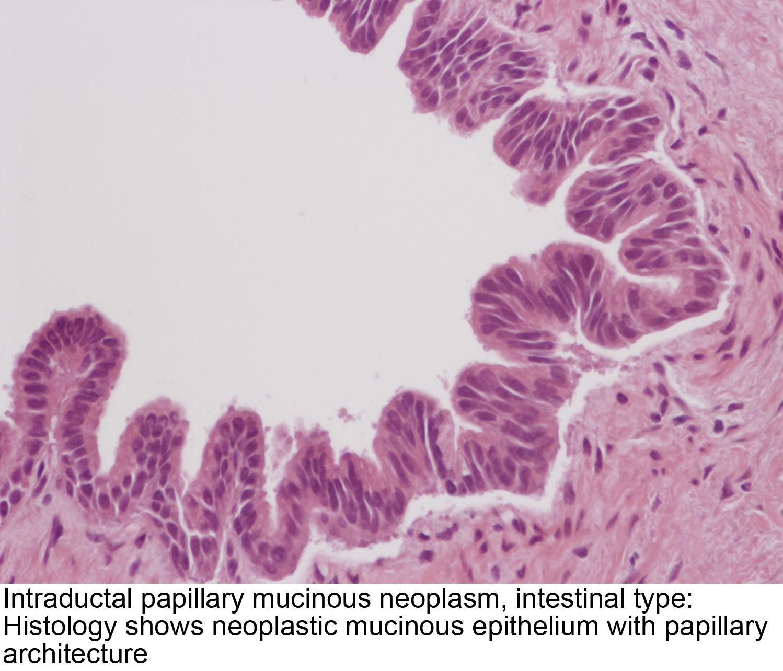 cancer renal esmo oxiuros en unas