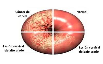 papanicolaou normal y anormal cancerului orofaringian