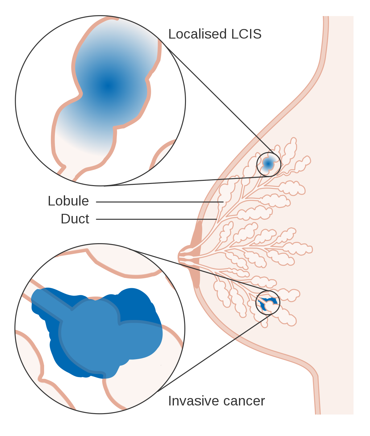 papillary lesion breast icd 10