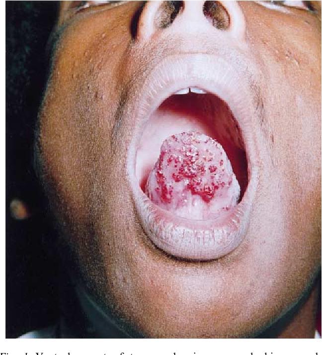 papillary lesion ventral tongue papillomavirus suite accouchement