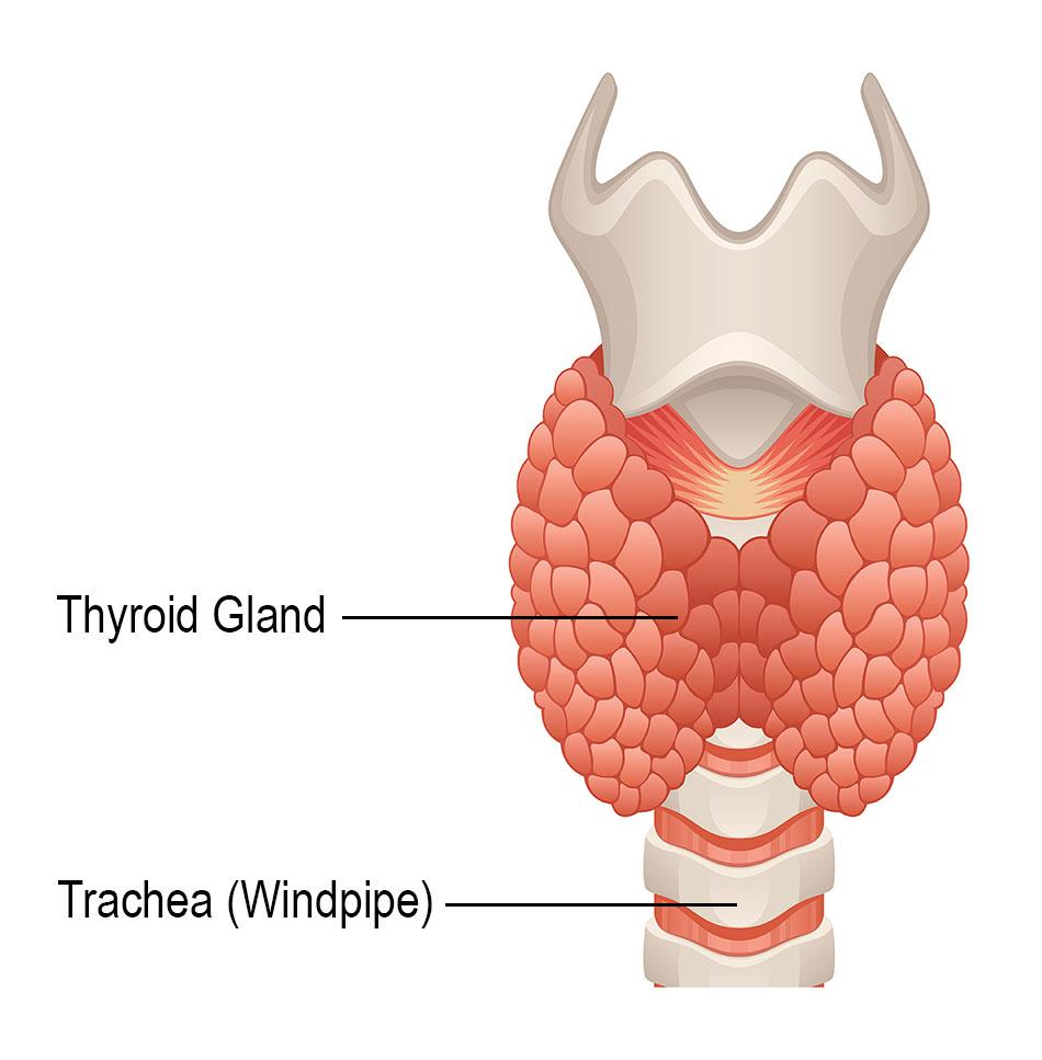 retete detoxifiere colon renal cancer with vena cava thrombus