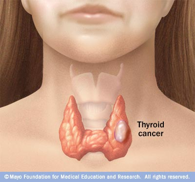 papillary thyroid cancer weight gain