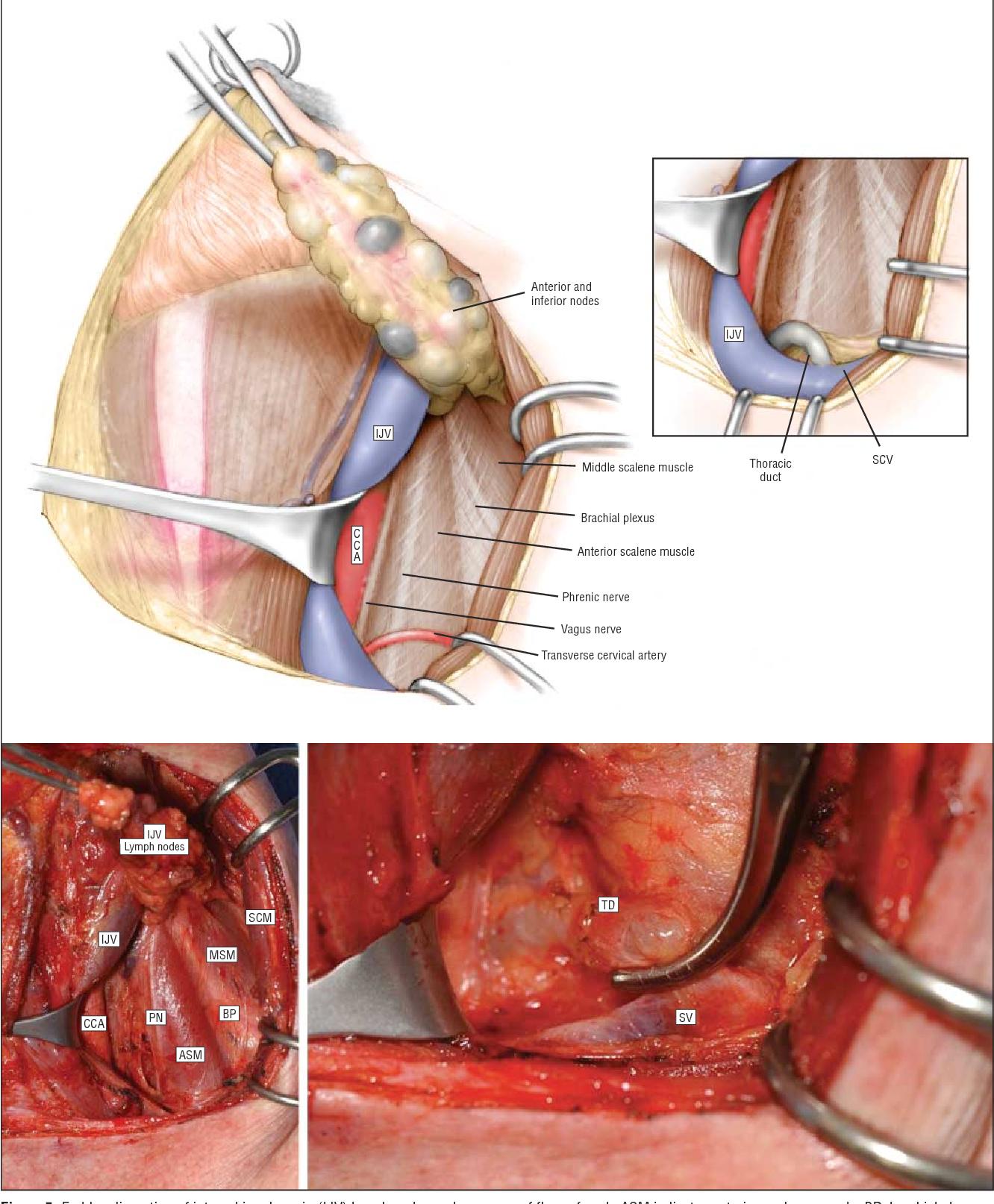 papillary thyroid carcinoma jugular cancerul esofagian tratament