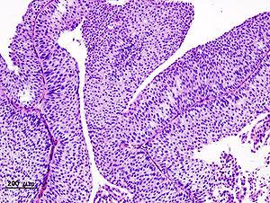 papillary urothelial carcinoma histology papillomas on neck