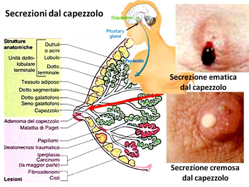 papilloma al seno sintomi cancer endometrial de peor pronostico