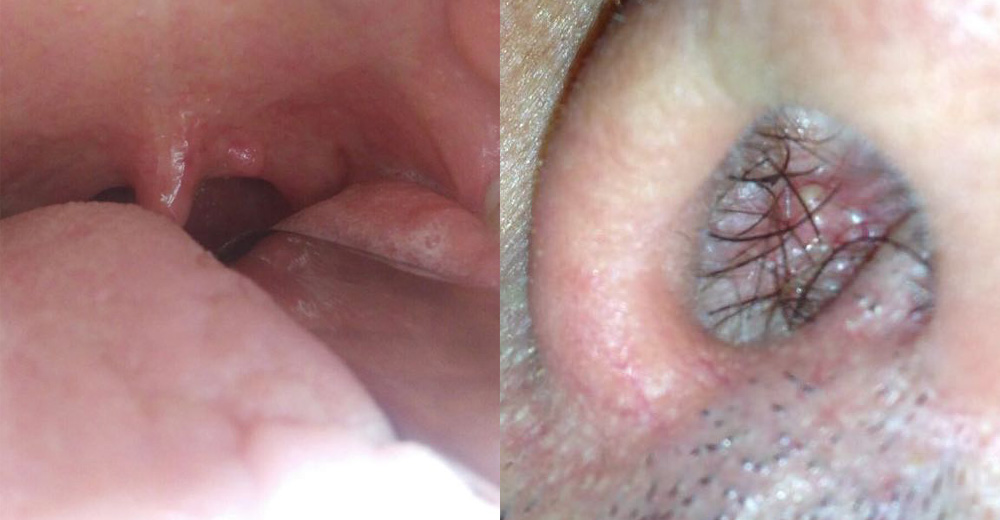 papilloma e tumore alla gola