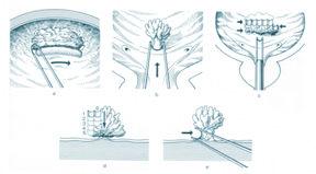 papilloma invertito vescica neuroendocrine cancer biomarker