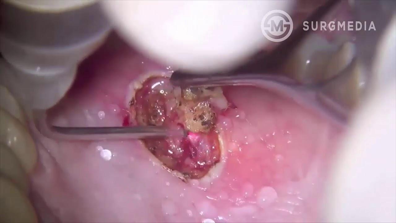 papilloma removal cancer de san inflamator simptome