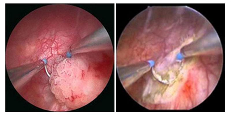 cancer cerebral cid human papilloma virus kezelese