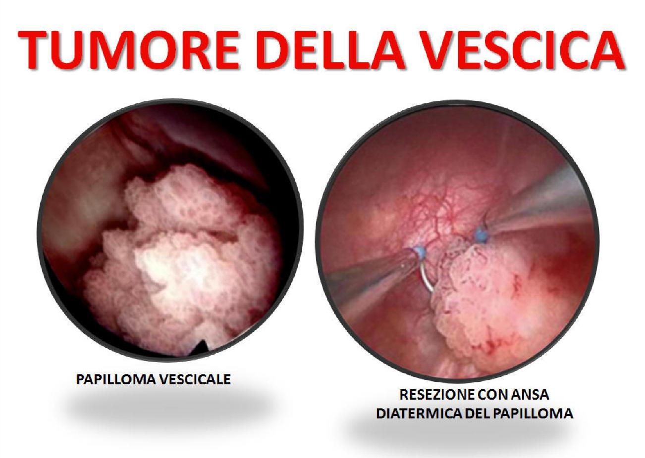 virus papiloma humano 6 y 11 hpv new medicine
