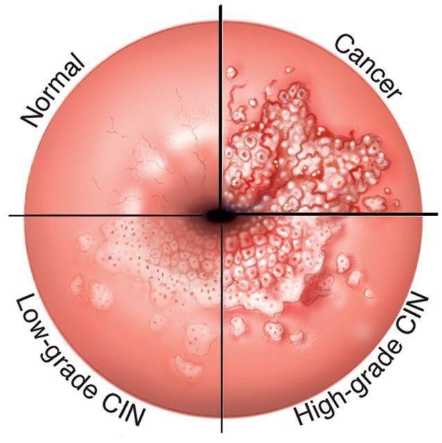 papilloma virus colposcopia positiva cancerul renal simptome