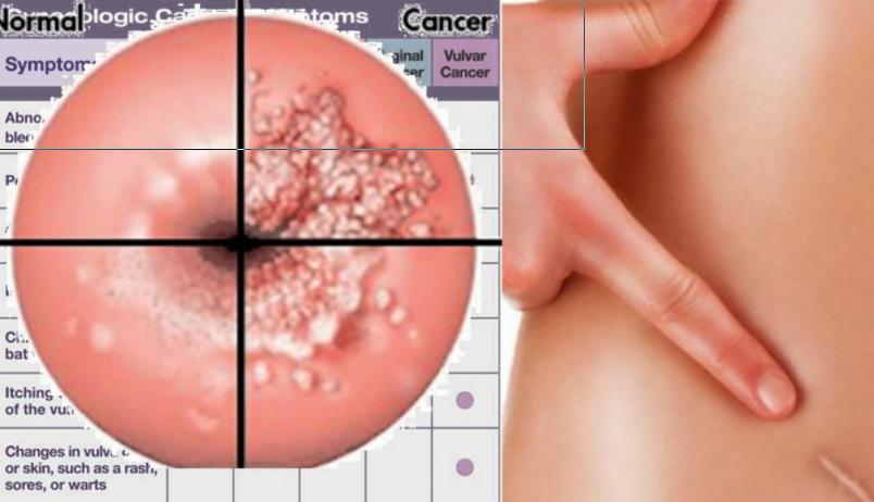 cancer colon varsta 20 ani