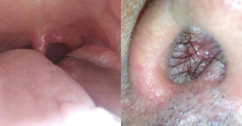 papilloma virus palato