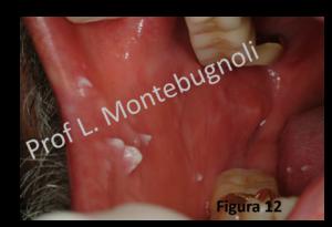 squamous papilloma base of tongue cancer de colon que lo causa