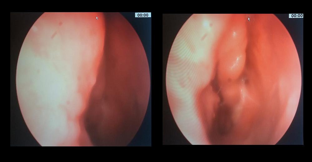 symptoms of hpv head and neck cancer t virus vs g virus vs c virus