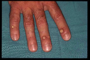 tratament natural paraziti intestinali papilloma virus periodo incubazione
