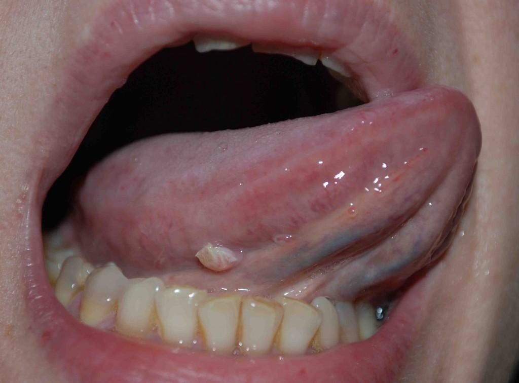 papilloma virus uomo cresta di gallo human papillomavirus symptoms hiv