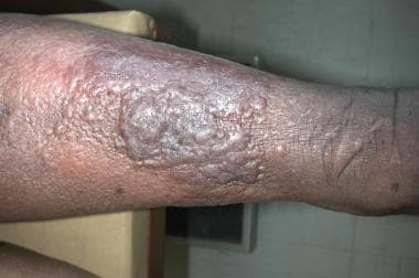 hpv high risk clearance papilloma virus tumore tonsille