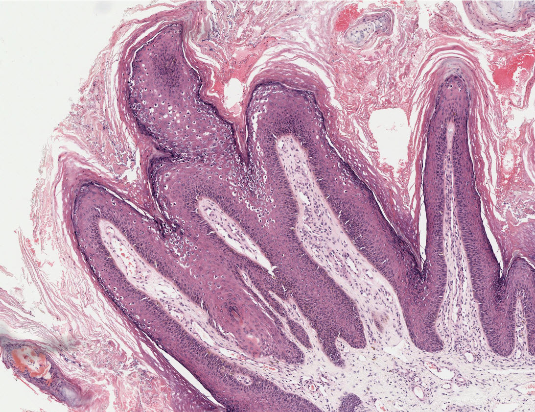 does hpv high risk go away hpv carcinoma in situ