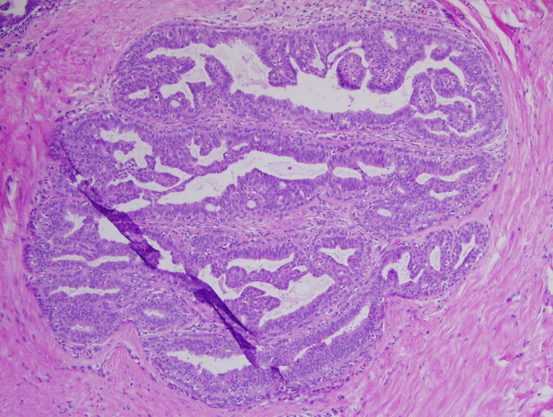 papillomatosis histology hpv e tumore