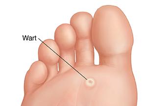 papillomavirus in feet