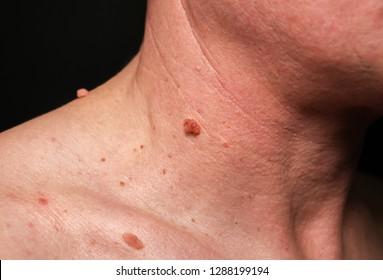 papillomavirus in skin