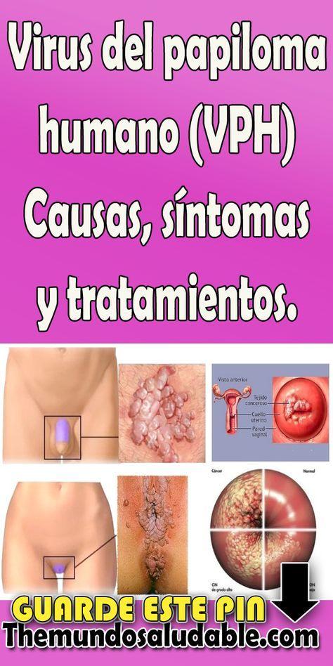 papiloma humano causas tratamiento