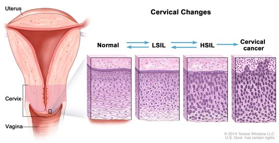 hpv throat cancer epidemic