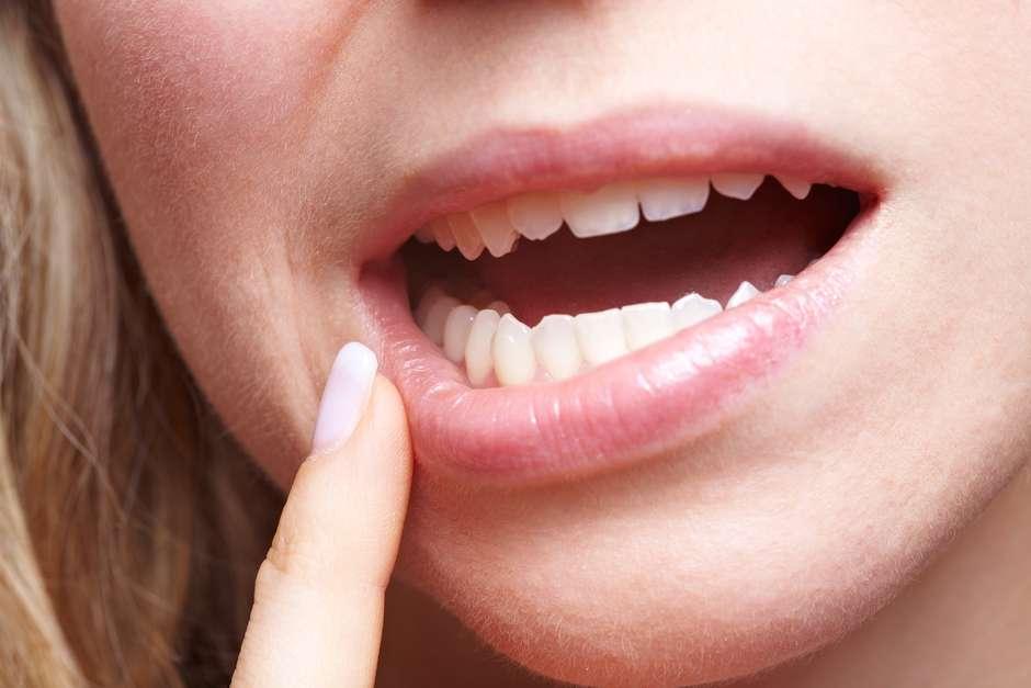 papiloma humano en la boca duele