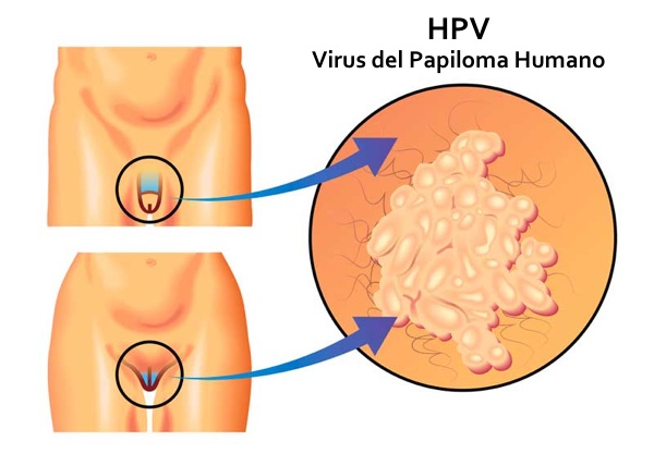 hpv strains and warts high risk human papillomavirus (hpv) dna detection