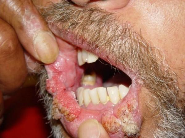cancerul de colon si durerile de spate oncocytic papilloma nasal