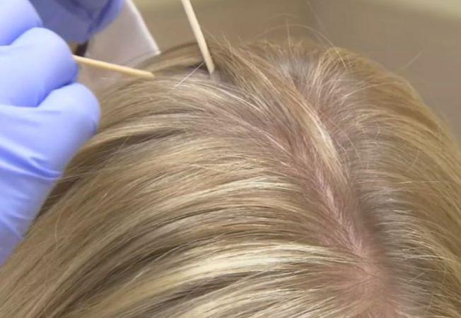 Capul mâncărime - Cauze scalp mâncărime, tratamente și remedii acasă