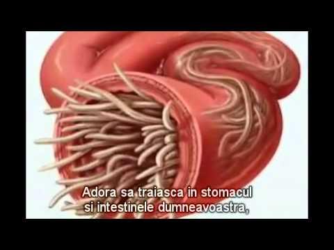 paraziti in corpul omenesc sarcoma cancer po polsku