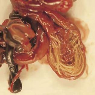 paraziti intestinali adulti simptome helmin?i parazi?i