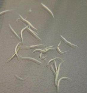 paraziti kod djece u stolici