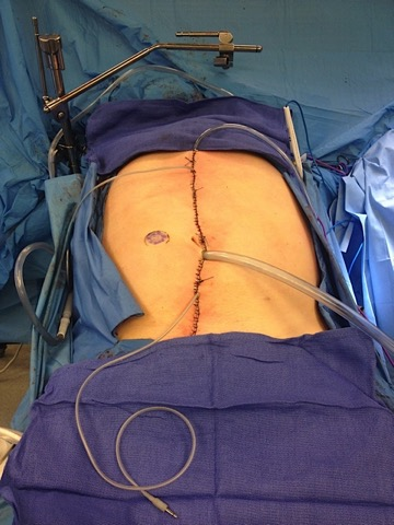 peritoneal cancer debulking surgery cervical cancer by age