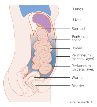 peritoneal cancer early detection