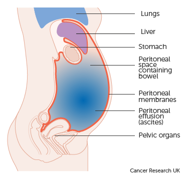 peritoneal cancer fluid retention cancer col uterin varsta