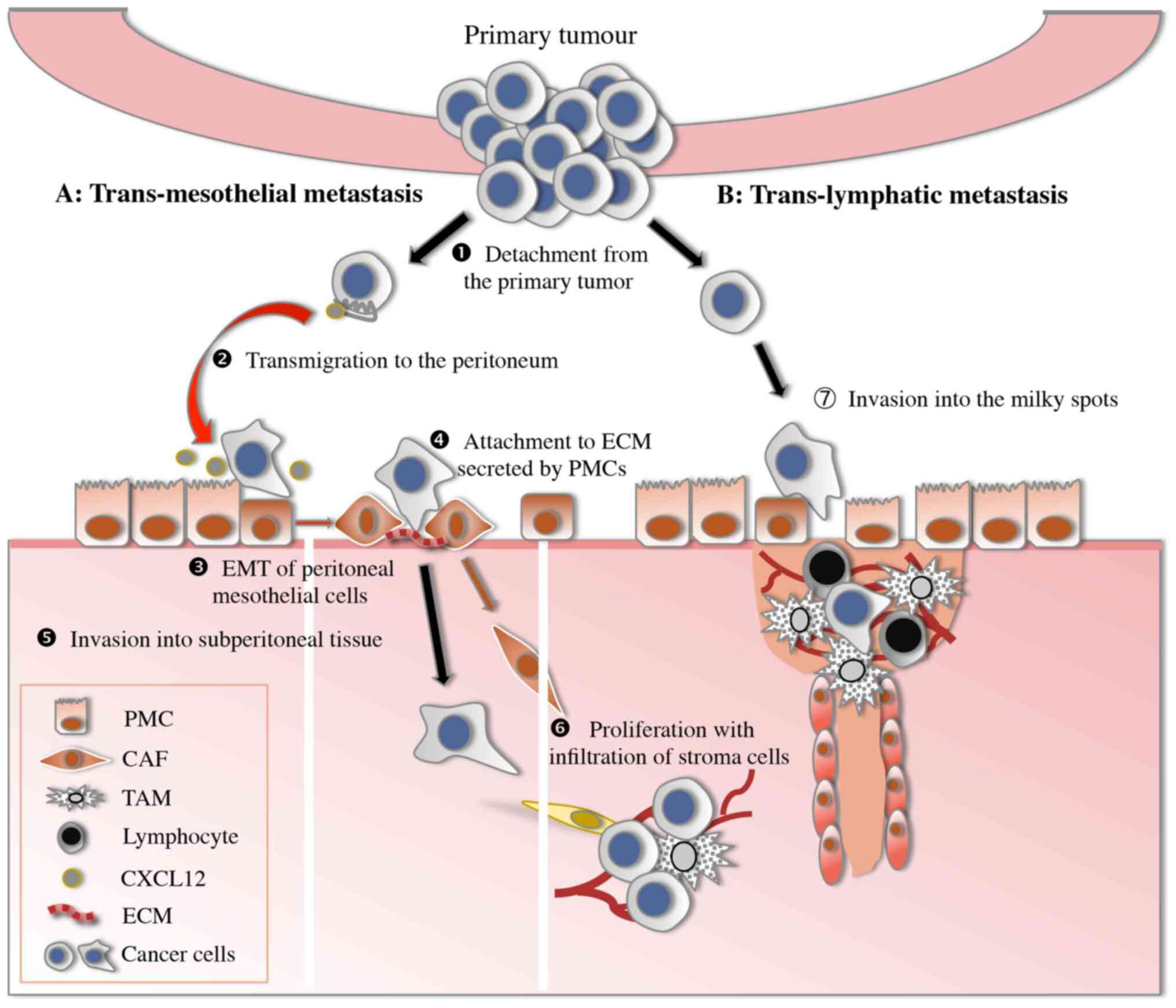 cancer colon hereditary
