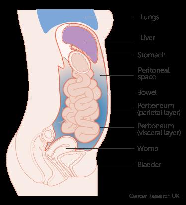 peritoneal cancer uptodate