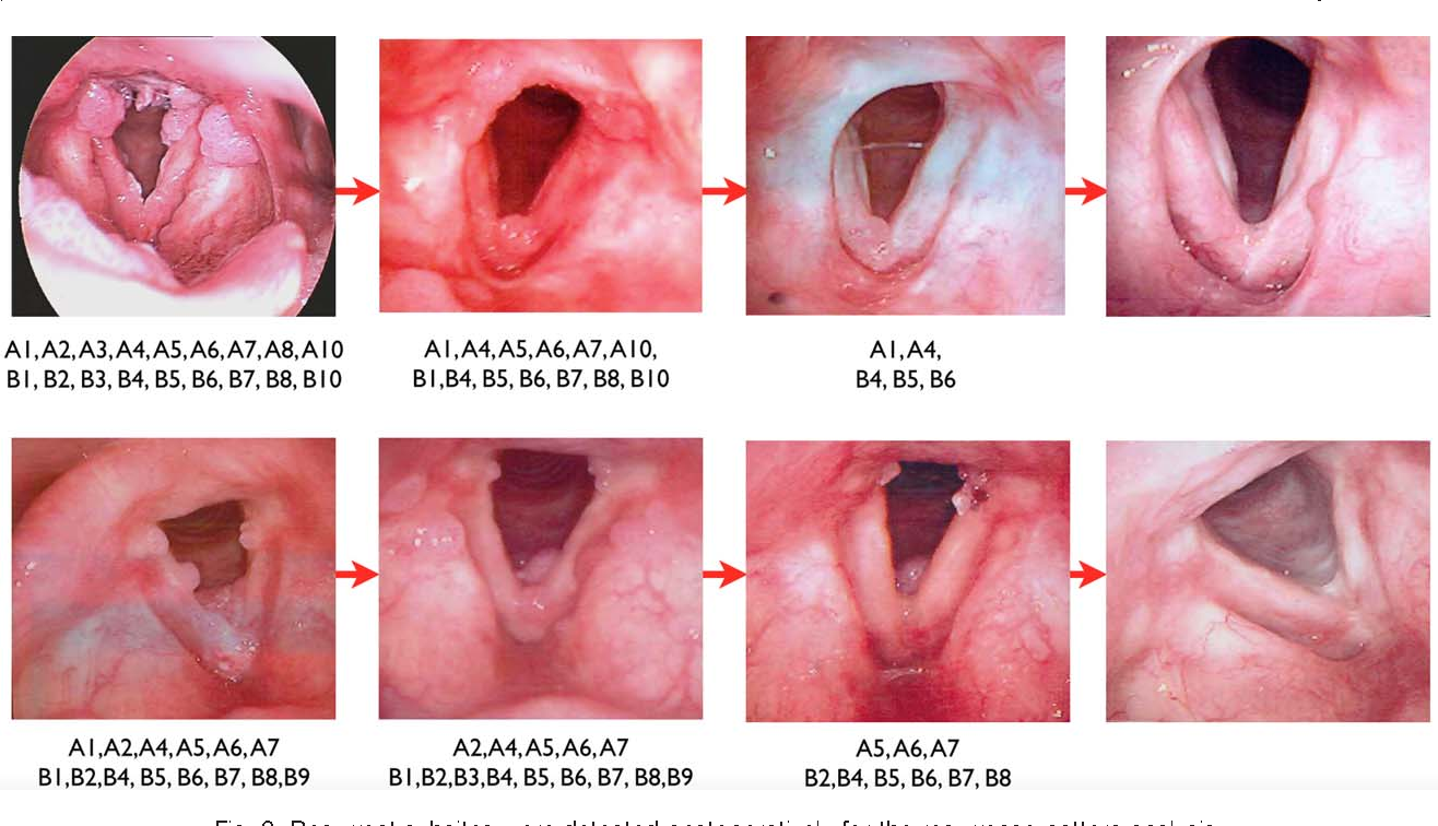hpv through tongue define helminthiasis in tamil